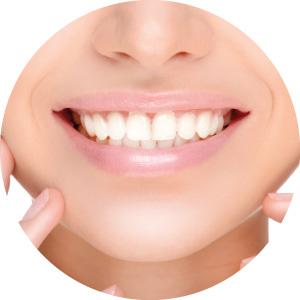 Bothell Orthodontics Braces